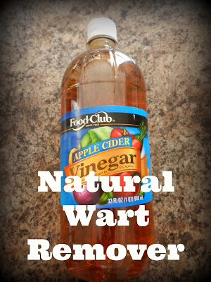 Natural Wart Remover!